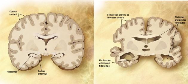 Cerebro_corte_frontal_Alzheimer